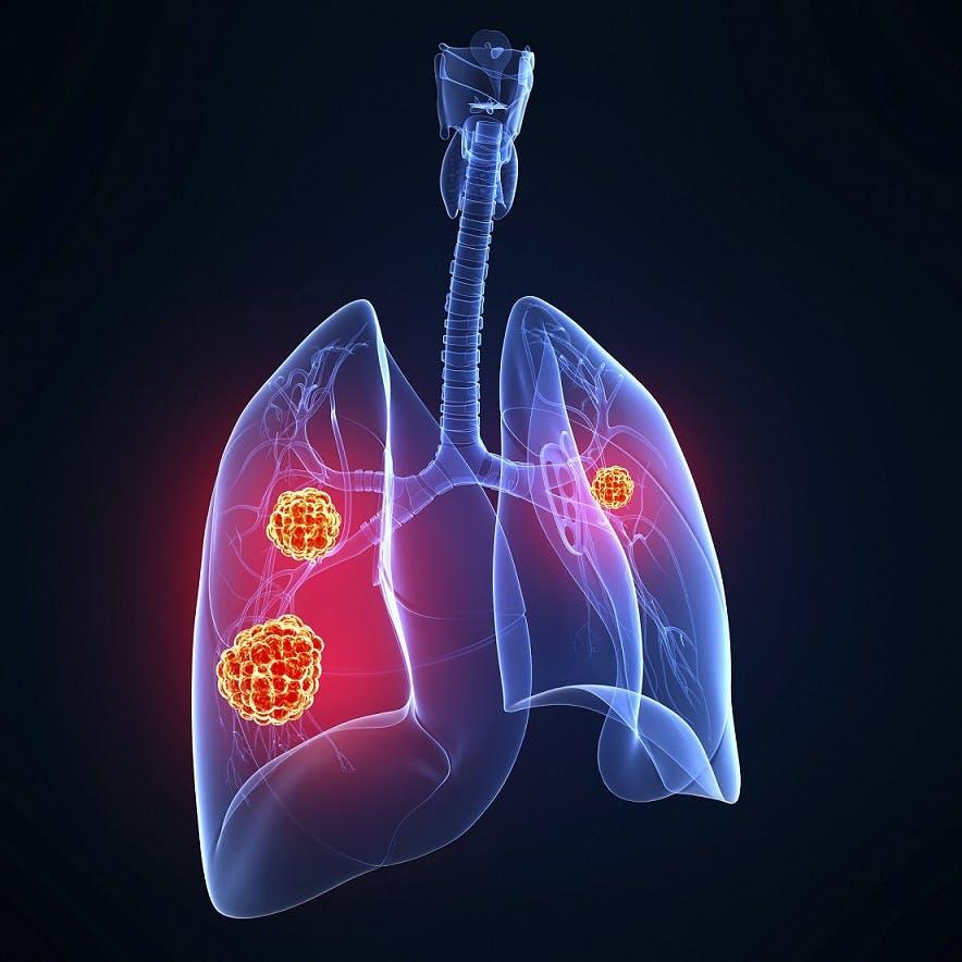 Un approccio molecolare per inquadrare meglio i tumori neuroendocrini del polmone