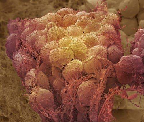 Nuove informazioni sul legame tra obesità e tumore al seno