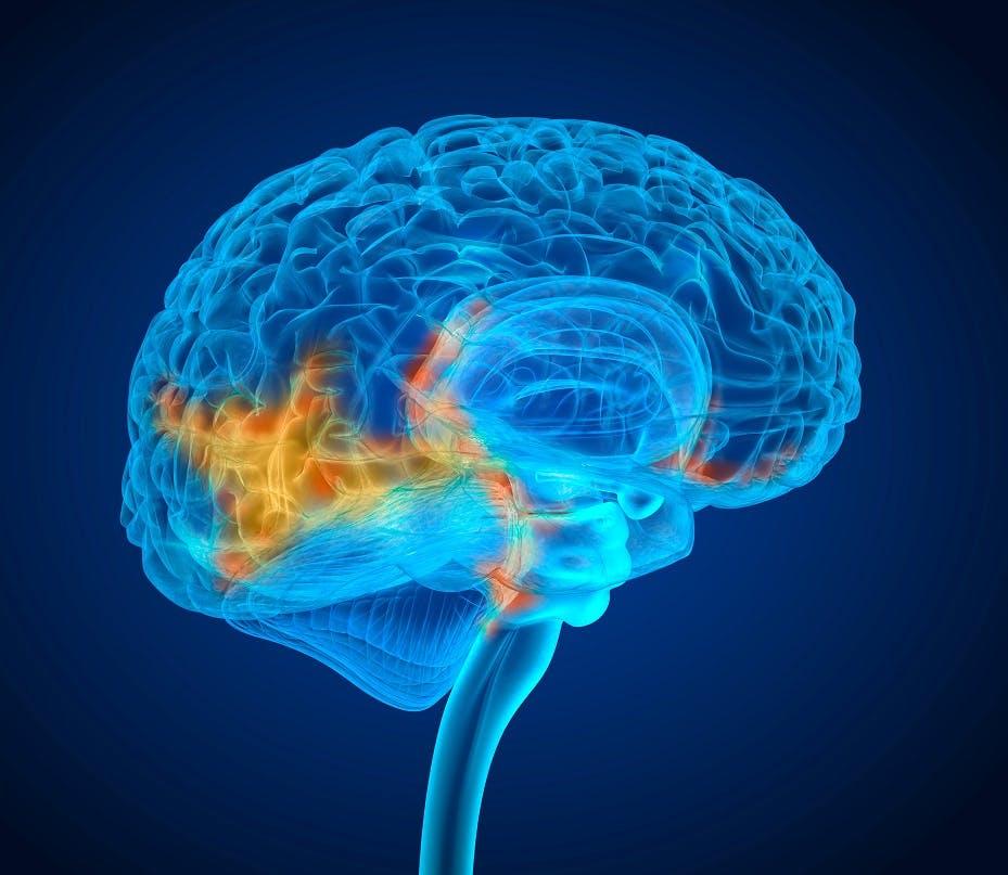 Ecco come attaccare un raro tumore del cervello che colpisce i bambini