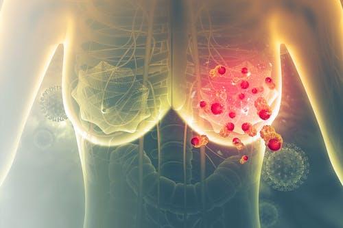 Novità interessanti nello studio di un vaccino contro il tumore metastatico del seno