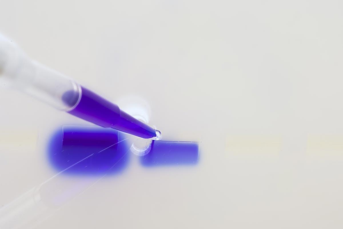 Otto molecole per predire la resistenza all'immunoterapia nel melanoma