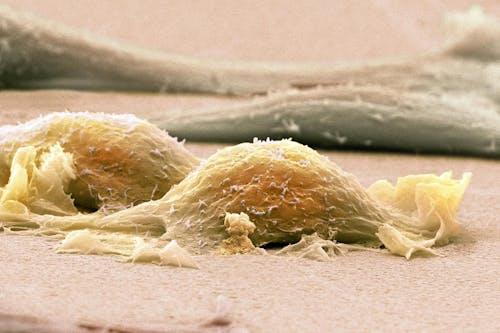 Verso una nuova combinazione terapeutica per i sarcomi dei tessuti molli