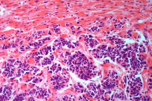 Verso nuove possibili terapie per il tumore del fegato