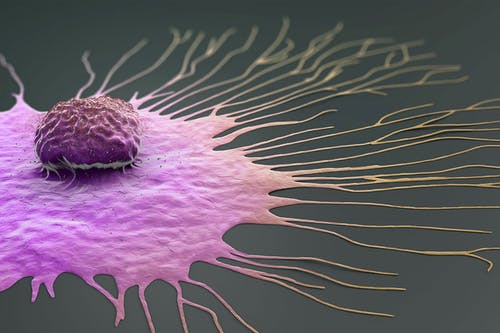 Un'opzione di cura per alcuni casi di tumore al seno triplo negativo, grazie all'acido retinoico
