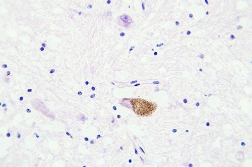 Un nuovo possibile bersaglio terapeutico contro il glioblastoma