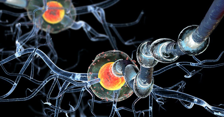 Ecco la proteina che mette le ali al glioblastoma
