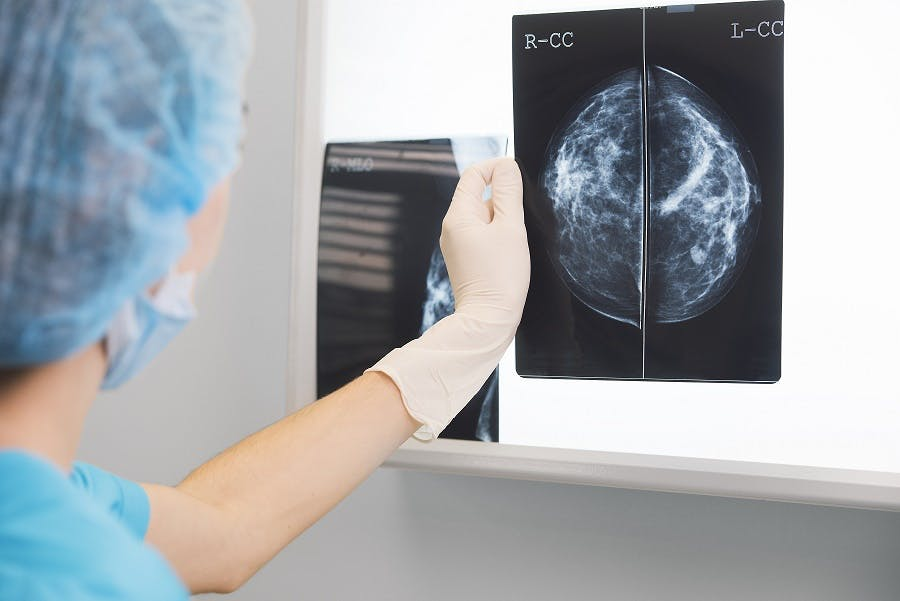 Una firma genetica per scegliere come affrontare il tumore del seno