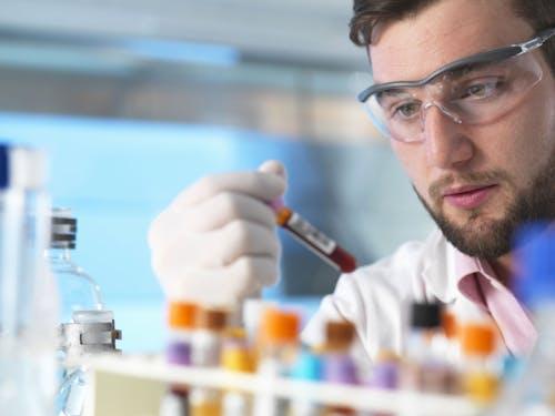 Un nuovo esame del sangue potrebbe aiutare nella diagnosi di tumore al pancreas