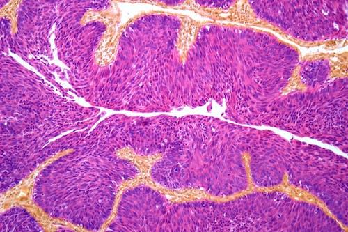 Verso la possibilità di predire la risposta del tumore infiltrante della vescica all'immunoterapia pre-intervento
