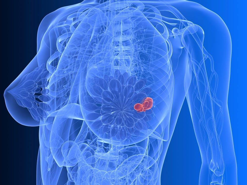 Tumore al seno e sviluppo di recidive: ecco quanto contano sovrappeso e obesità