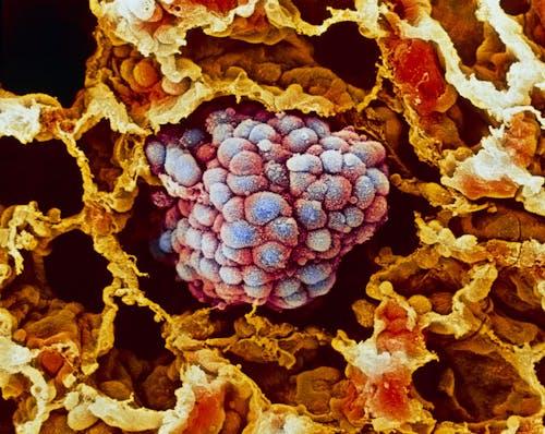 Nuovi dettagli sulla firma molecolare che predice il tumore del polmone