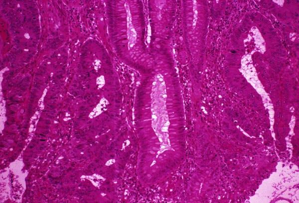 TRF2: un nuovo bersaglio terapeutico contro il cancro del colon-retto