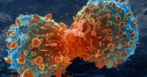 Il serbatoio che dà benzina al tumore al polmone