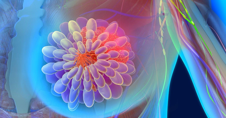 Il cancro al seno impara dal cuore a dar vita alle metastasi