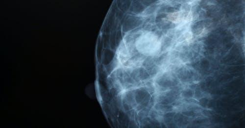 Cancro al seno: identikit di IL-4, la molecola che promuove le metastasi