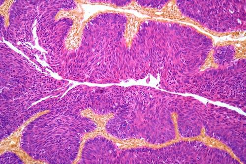 Tumore della vescica, come funziona la chemioterapia