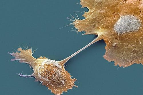 Tumore del pancreas: verso una possibile strategia terapeutica con vaccinazione antitumorale associata a chemioterapia
